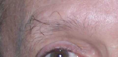 The Big Hairy Eyebrow